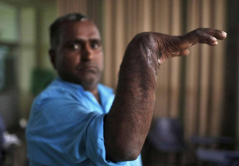 Visheshwar Singh displays his re-attached right hand that was mangled in a small auto part-making machine